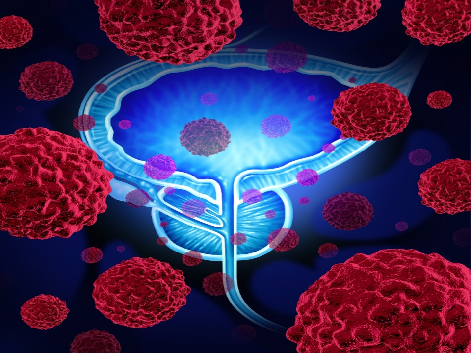 ASCO 2020: Maintenance Therapy with Avelumab Post-Chemo Improves Overall Survival of Bladder Cancer Patients