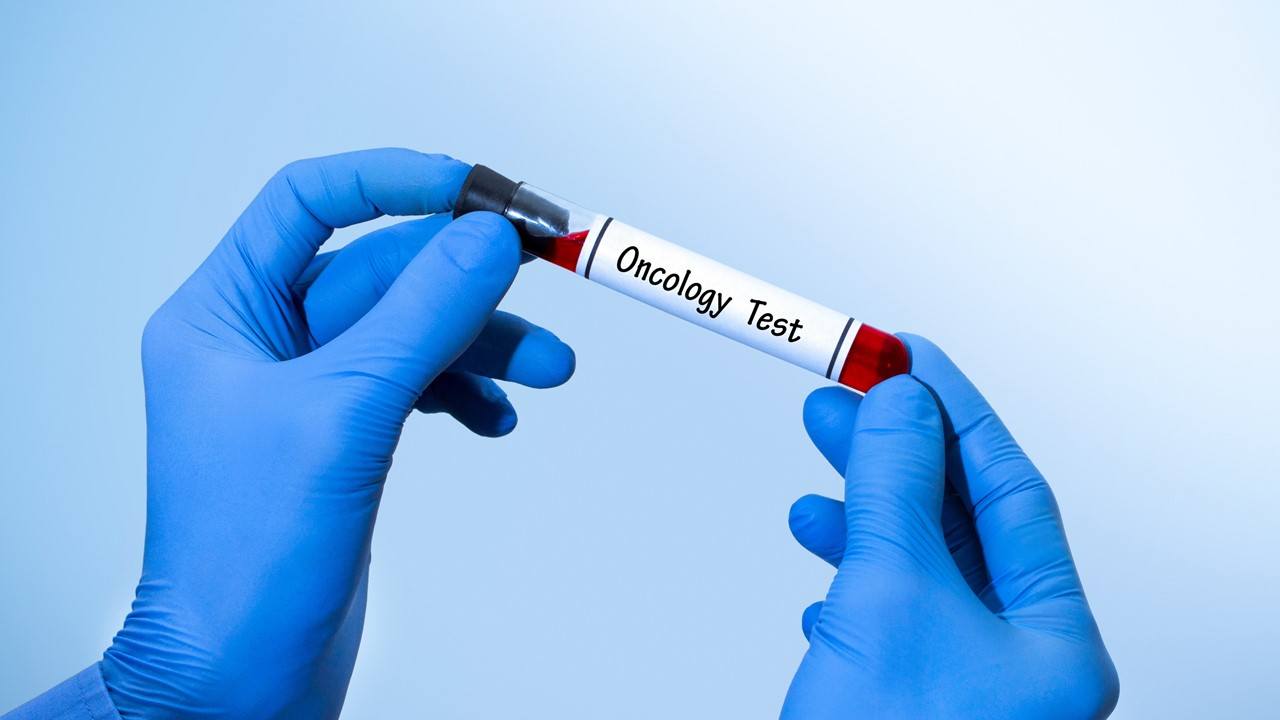 FMI's Liquid Biopsy Test Adds 3 Companion Diagnostic Indications for Advanced Ovarian, Breast and Lung Cancers