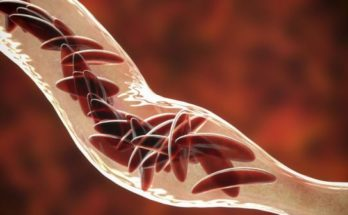 sickle cells in a blood vein