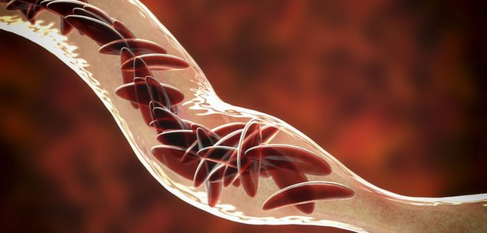 sickle cells in a blood vein
