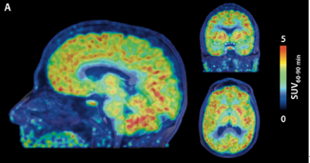 透過 HDAC 基因的開關是表觀遺傳學的一種形式。上圖顯示出人腦的學習圖像,基因反射的最高是紅色,黑色和藍色區域顯示基因活性的最高水平,幾乎沒有任何的 HDAC 存在。