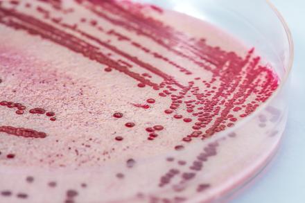 圖示:李斯特菌(Listeria monocytogenes)