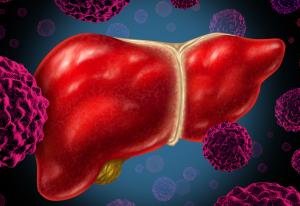 livercancer