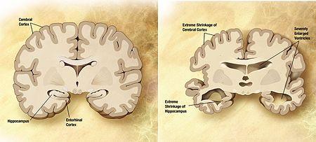alzheimers_disease_brain_comparison