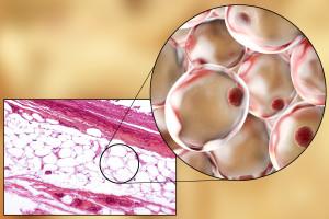 白色脂肪組織