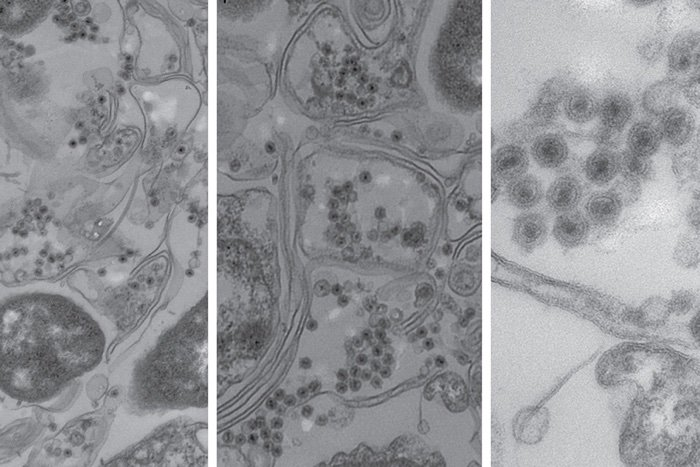 被無尾病毒感染的海洋細菌,其細胞壁是長雙線,病毒是中心為黑色的點狀物。來源:MIT News