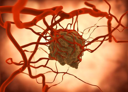腫瘤類器官成癌症替身 個人化治療大邁進