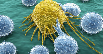 34735824 - cancer cell attacked by lymphocytes