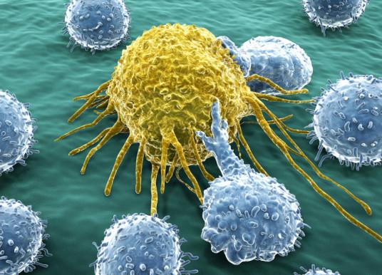 診斷方式混雜   成為癌症免疫治療的絆腳石 ?!