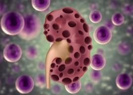 單細胞轉錄體 再揭腎臟病神秘面紗