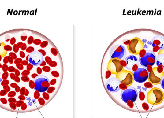 血液細胞基因體變化 可望成為白血病診斷的章魚哥?!