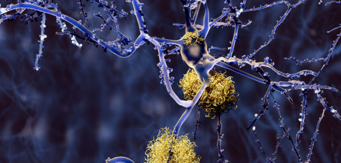 44110954 - alzheimer disease, neurons with amyloid plaques