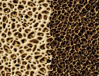 骨髓剖面圖:健康(左)和骨質疏鬆症(右)