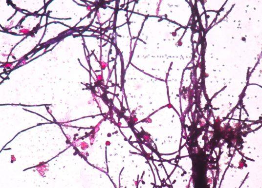 酵母菌遺傳演化不穩定因子:密碼子轉譯成非對應的胺基酸