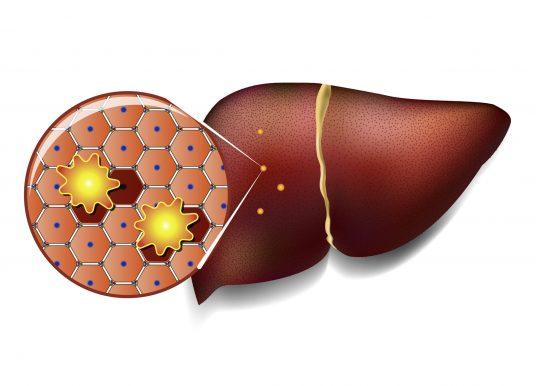 人類肝臟細胞圖譜發現新細胞亞型 護肝更全面