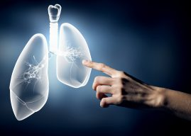 肺癌基因檢測納健保 用標靶須附檢測報告