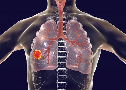 TRACERx 成果登 Nature 子期刊 優化肺癌擴散及預後風險預測