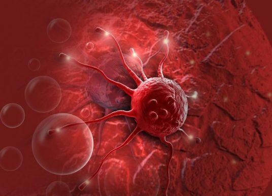 美國血液學會年會(ASH2019):血液腫瘤新藥三大臨床試驗重點整理