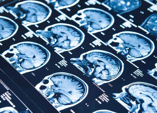 Xenon 獨家技術授權Neurocrine 合作抗癲癇藥物開發