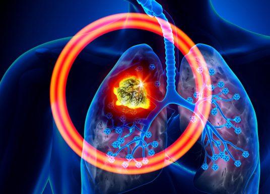 小細胞肺癌免疫治療群雄爭霸!Imfinzi 於美國獲准上市盼突圍