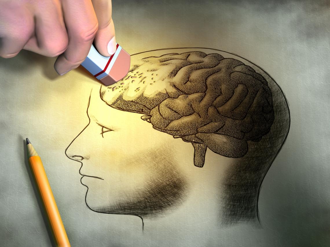 史上第一項阿茲海默症腦部病變造影藥物經過 FDA 核准上市