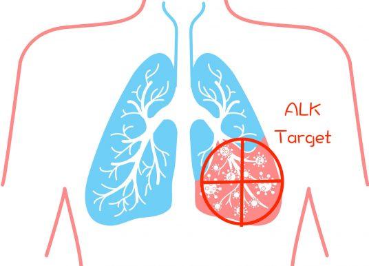 深度解析 ALK 肺癌標靶臨床試驗 ALEX:PFS 為史上最高? OS 大預測?