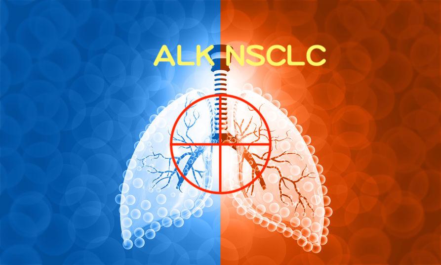 提升 ALK 肺癌 5 年存活率! Alectinib 勝過於 Crizotinib