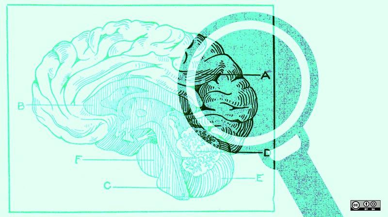 微生物能影響腦中風?國際級研究:腸道菌相可預測腦部血管瘤