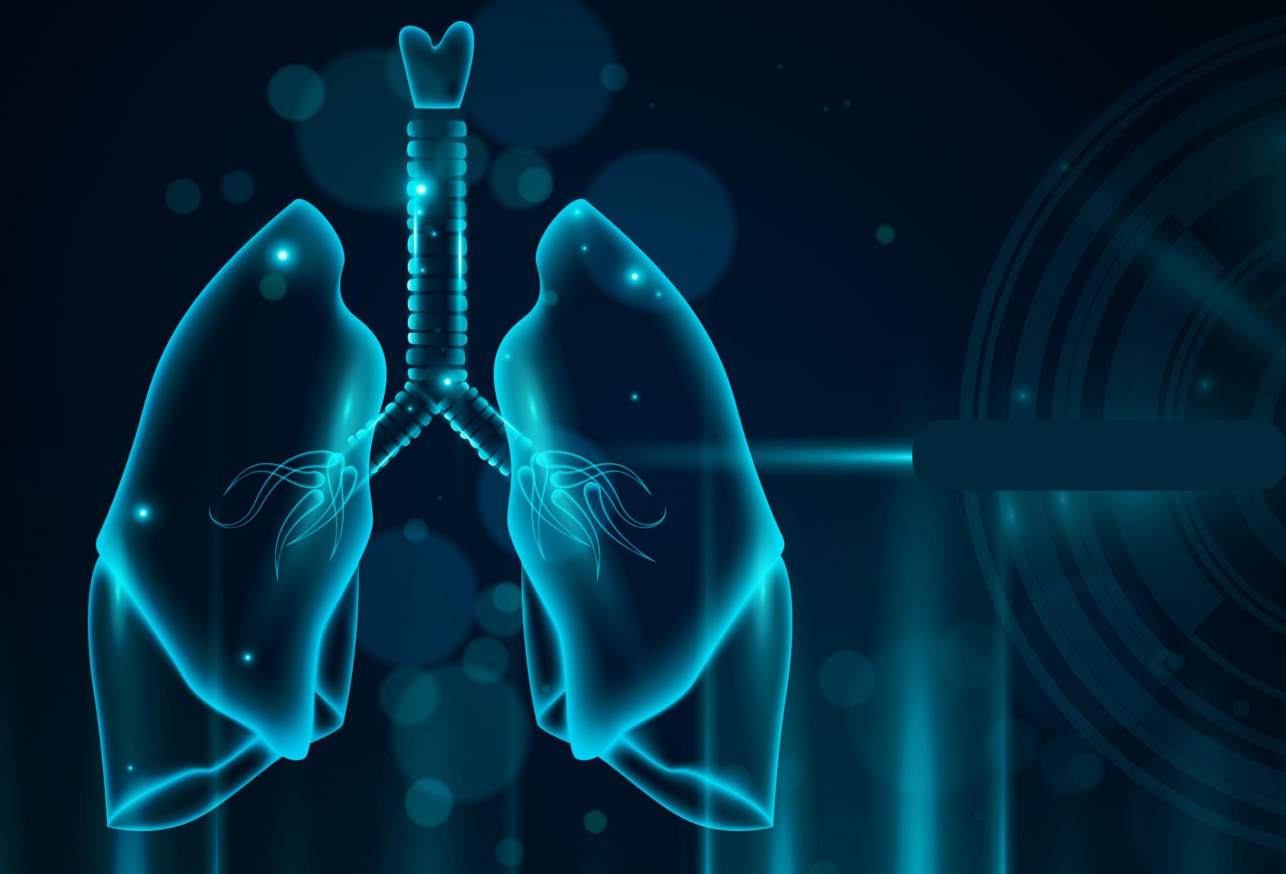 東亞第一個非吸菸肺腺癌深度蛋白體學綜觀研究!早期診斷和治療大進展!