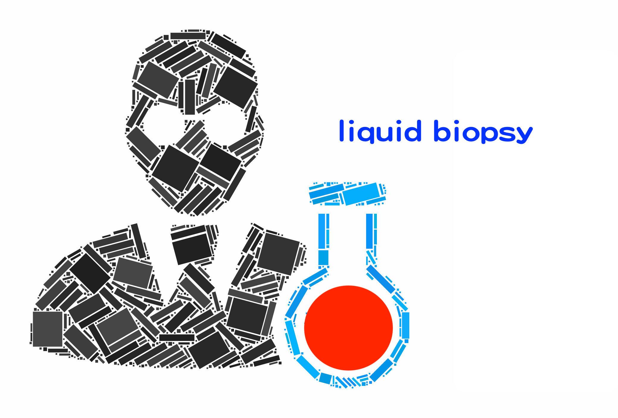 FDA 核准第一個液態切片基因檢測!診斷、治療將更快速!